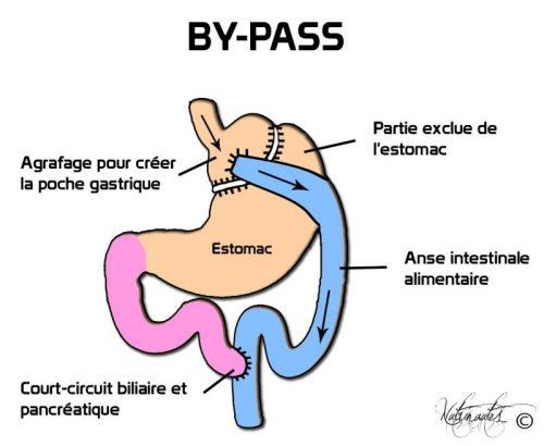 crbst_Bypass0